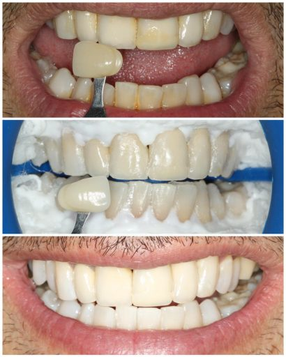 Before - Familydentalcarecentre
